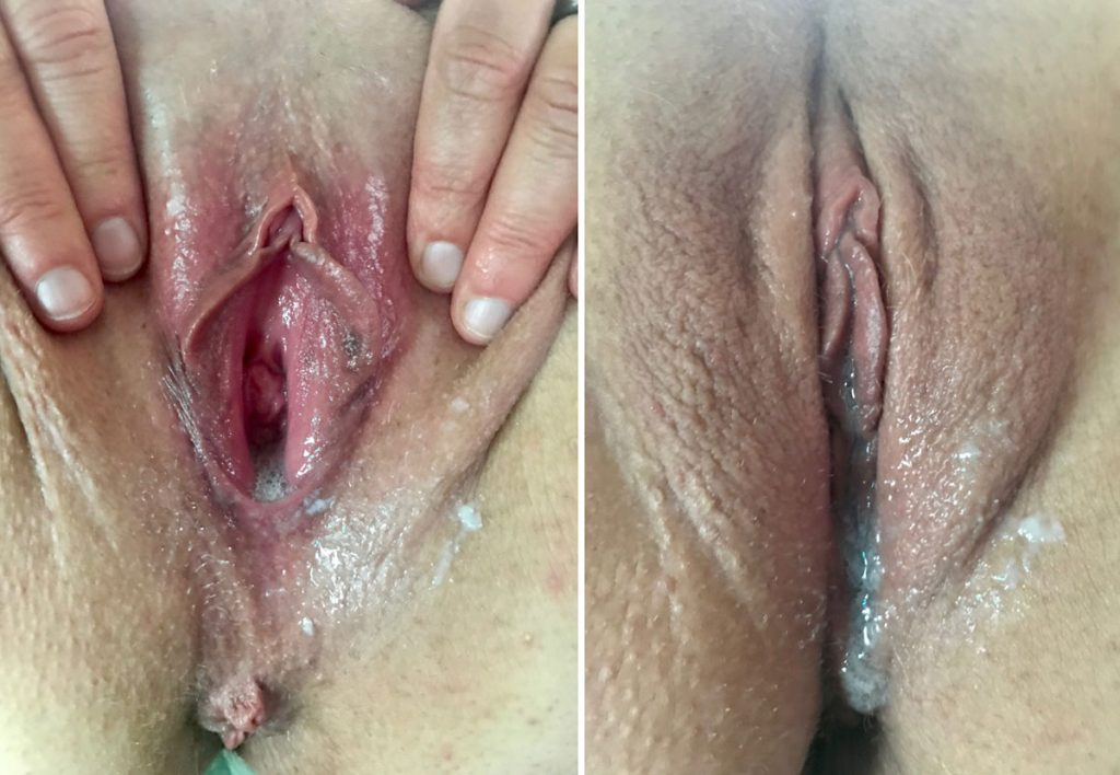 Pussy Creampie Picture
