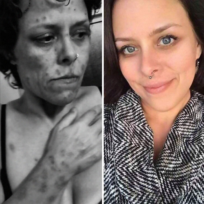Drug Addicts Before And After Getting Clean